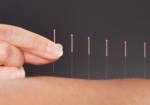 medical accupuncture explained